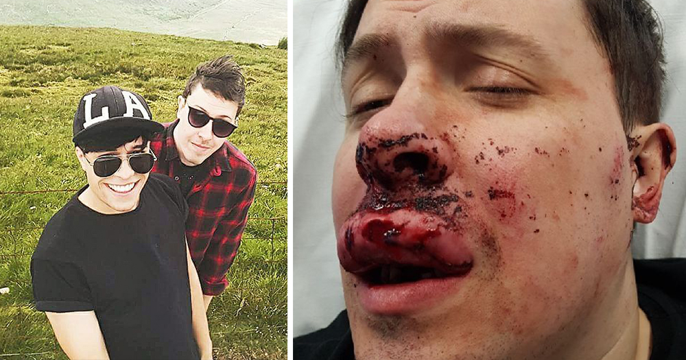 dublin-man-husband-recovering-vicious-homophobic-attack-laois