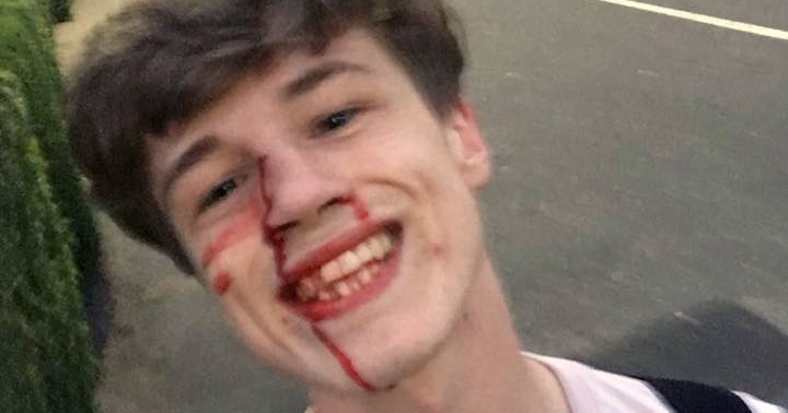 Blair Wilson smiling while taking a selfie after the homophobic attack