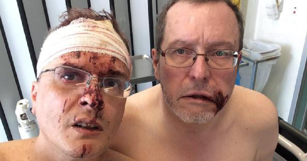 Gay Couple injured after homophobic attack