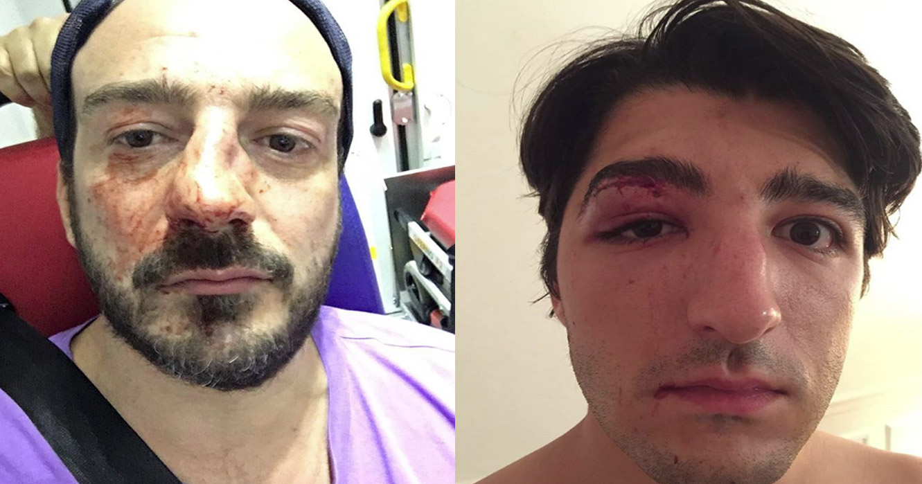 Two gay men attacked in Paris