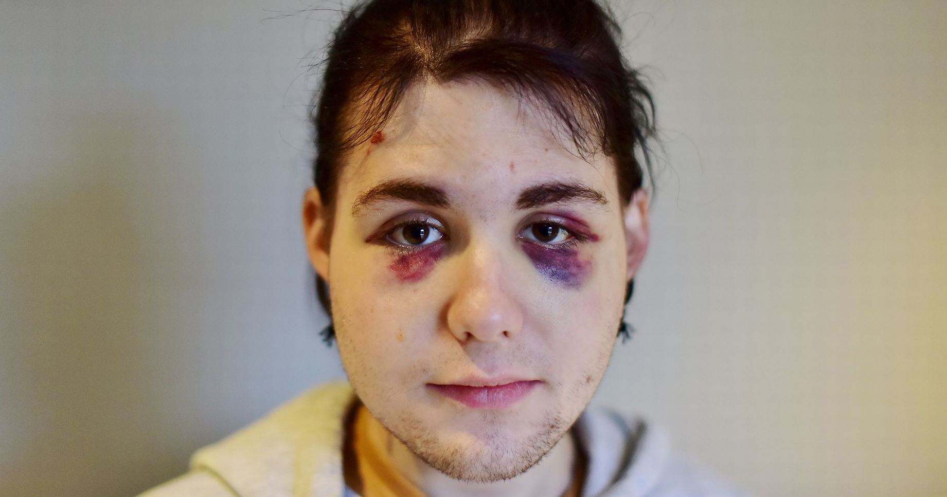 A bruised Kydis Zellinger whose homophobic attacker was jailed