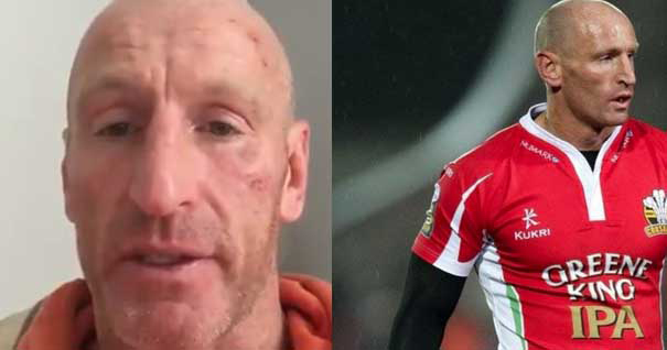 Image of Gareth Thomas after the attack, and on the field.