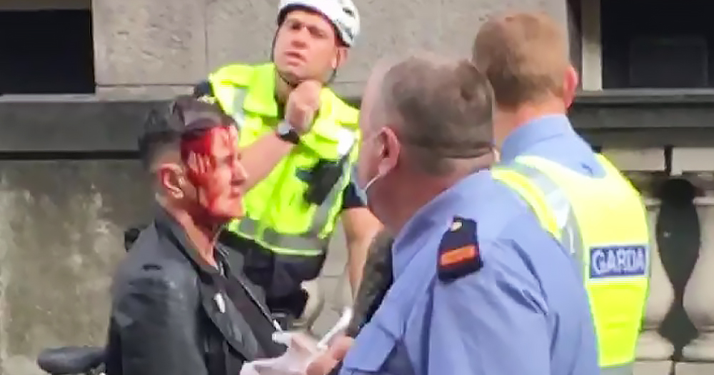 A woman with a head wound with three policemen standing around her